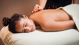 Acupuncture Treatment Service