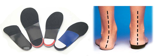 custom-made orthotics