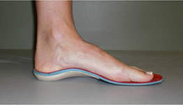 Custom Orthotics Service