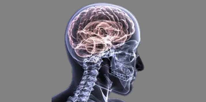 Five Things About Concussions