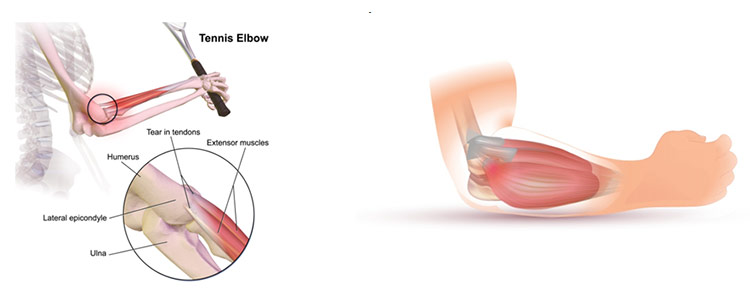 Tennis Elbow Causes And Prevention